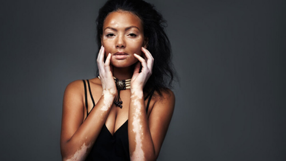Vitiligo prevention: Is it possible?
